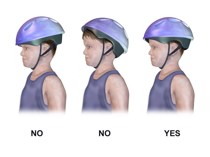 Bicycle_Helmet_-_Correct_vs._Incorrect_Placement.png